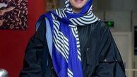 عکس قبل از عمل فریبا نادری لو رفت! +تغییر چهره جنجالی