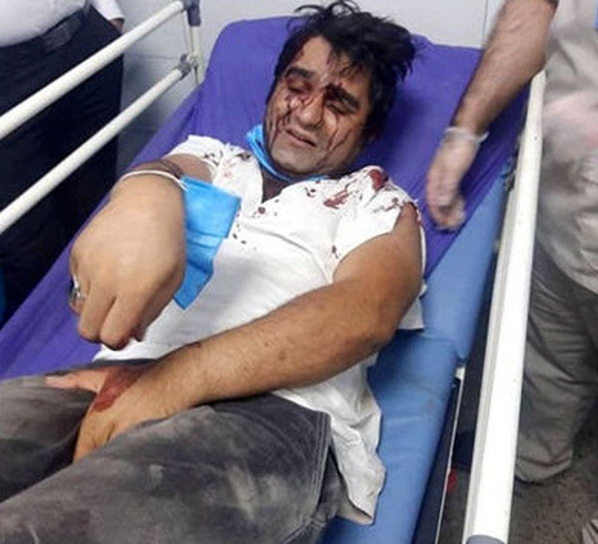 حمله خونین به 2 بازیگر معروف تلویزیون! +عکس